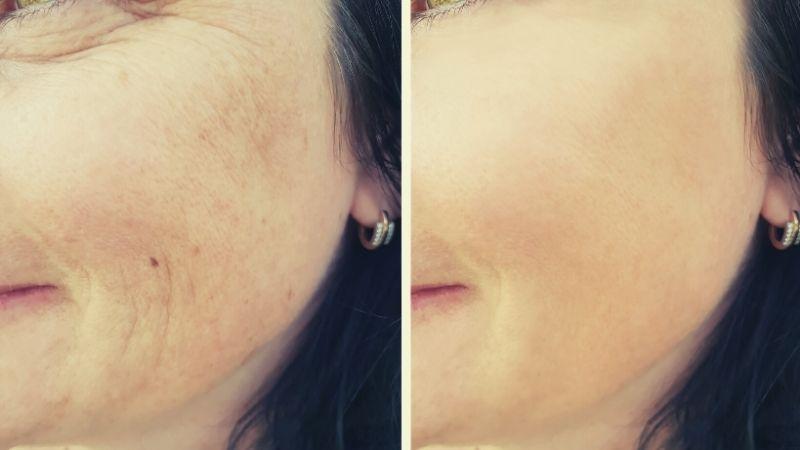 kolagen skóra zdrowie zmarszczki kosmetyki